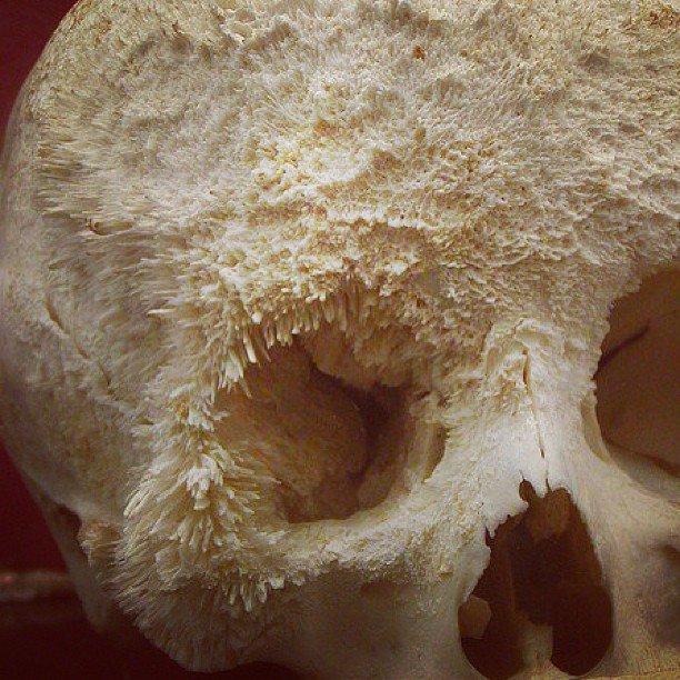 Bone Cancer. it makes me feel tingly. Bone Cancer it makes me feel tingly