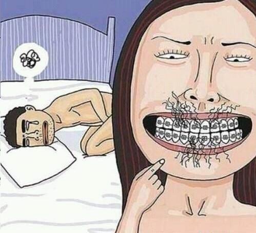 Blowjobs with braces. . Blowjobs with braces