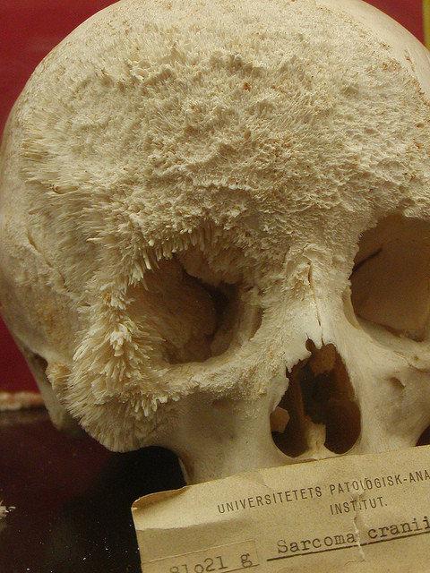 Bone Cancer Skull. I thought it was kinda cool... My only regret..is that I have..bonitis Bone Cancer Skull I thought it was kinda cool My only regret is that have bonitis